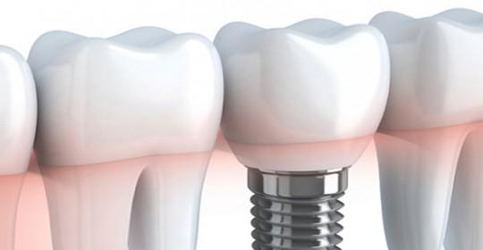 Serata di approfondimento odontoiatrico: Verbania 2018