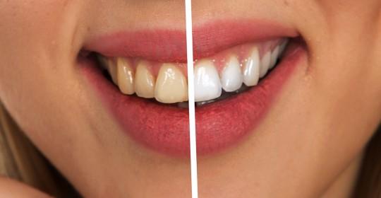 Sbiancamento dentale: i rischi del fai da te