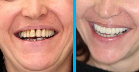Prima e Dopo: Riabilitazione in paziente parodontopatica