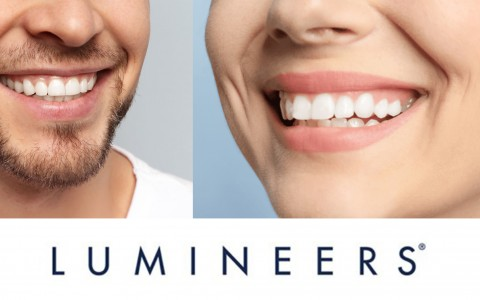 Lumineers: un sorriso da star con le nuove faccette dentali più sottili di una lente a contatto