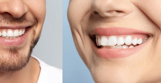 Un sorriso da star con le faccette dentali più sottili di una lente a contatto