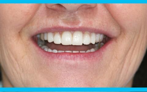 Prima e Dopo, un sorriso può cambiare la vita!